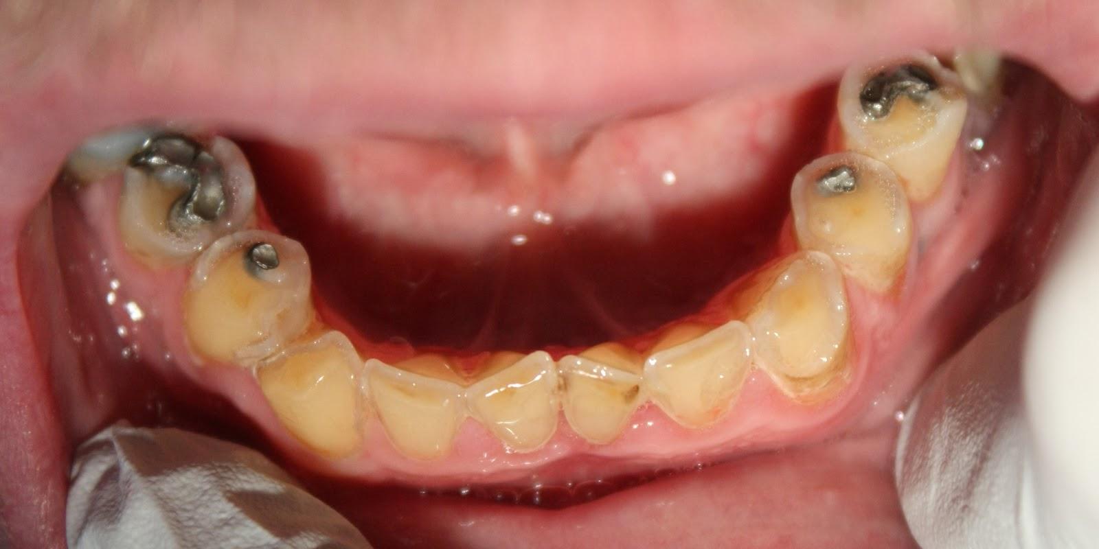 Huonot Hampaat