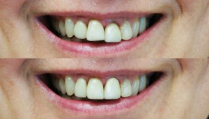 digital smile design-Marko